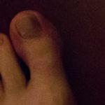 Roesing Toe